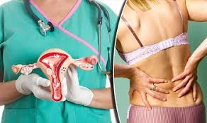 Image result for cervical cancer treatment images