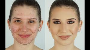 cover pitted acne s with makeup