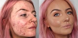 cystic acne sufferer shares