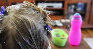 head lice how to avoid them get rid