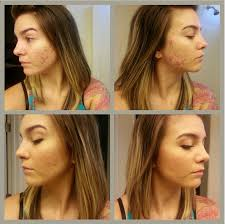 makeup for acne scars makeup tips and