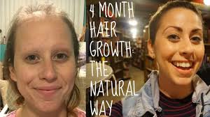 hair growth after chemo naturally