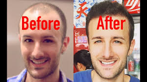 entire hair transplant surgery video