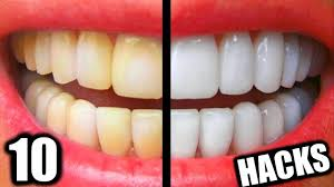 teeth whitening everyone should know