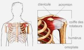 "Image search result for ""shoulder orthopedic orthosis"""