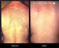 laser hair removal procedure in toronto