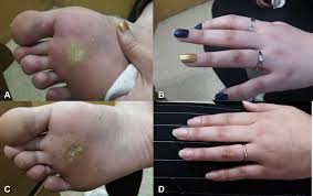 flat warts on the hand and foot after