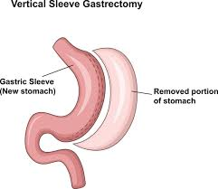 gastric sleeve surgery results how