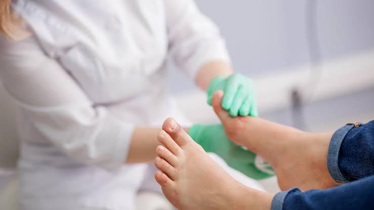 """Resultado de imagen para secarse bien el pie diabetico"""""""
