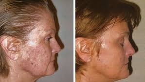 enlarged pores treatment minneapolis