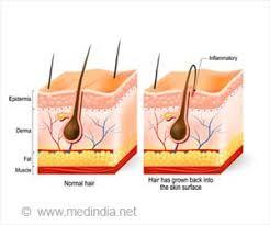 home remes to get rid of ingrown hair