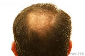 link between testosterone and baldness