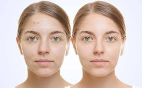 can you wear makeup after a glycolic l