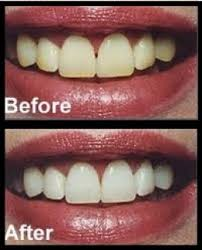 teeth whitening recipe with baking soda