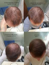 acell prp hair regrowth therapy