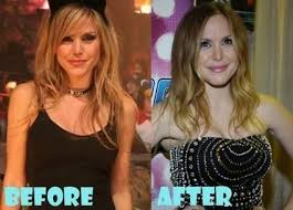 Leah Miller Plastic Surgery Before and After Ph...