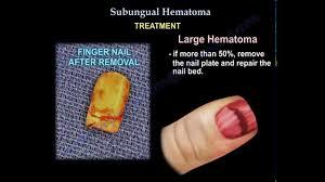 subungual hematoma everything you