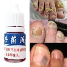 essence oil nail fungus toe