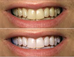 homemade turmeric teeth whitening paste