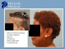 traction alopecia hair transplant in