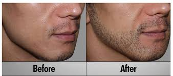 beard hair transplant service ब ल