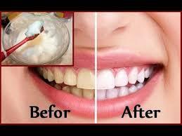 diy teeth whitening at home in 2