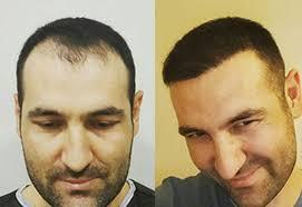 best hair transplant clinic in turkey