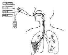 急性呼吸不全に対するBALの実施