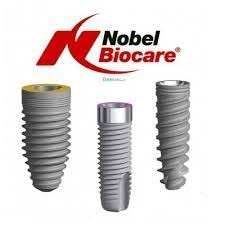 What will be the total cost of a tooth implant (Nobel implant with ...