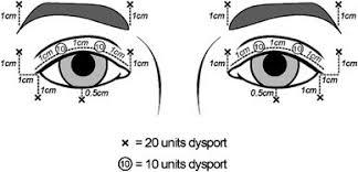 blepharospasm and hemi spasm a