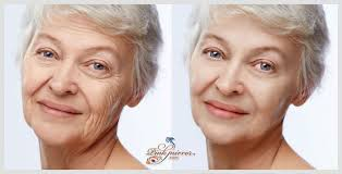 face wrinkle retouch remove wrinkles