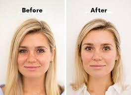 how to get rid of dark under eye circles