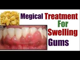 how to get rid of swollen gums how to