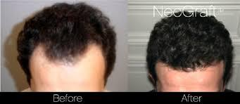 neograft hair transplant results bhrc