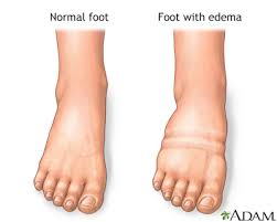 foot leg and ankle swelling