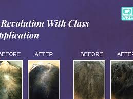 qr 678 hair growth treatment effect