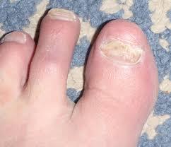 toe nail fungus barefoot running blood