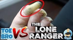 toenail cutting of a long nail 2