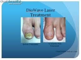ta laser toenail restoration center