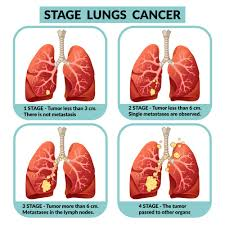 liver cancer stage 4 treatment لم يسبق ...
