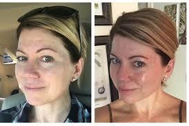 wear makeup after microdermabrasion