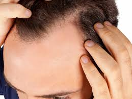 cost of hair transplants abroad