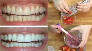 natural teeth whitening 7 effective