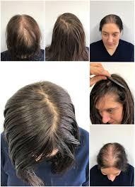 saifi wroclaw hair transplant center