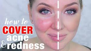 cover acne redness makeup