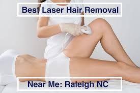 best laser hair removal raleigh nc near