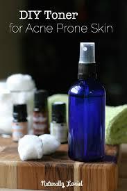 diy toner for acne e skin