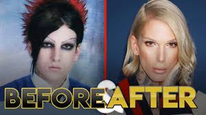 jeffree star before after