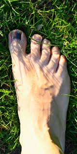 black toenail from running how to
