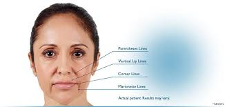mouth and nose area wrinkle treatment